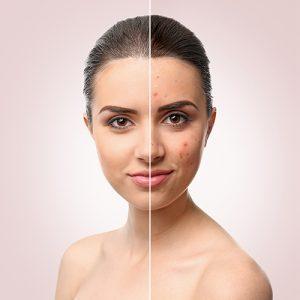 acne_small